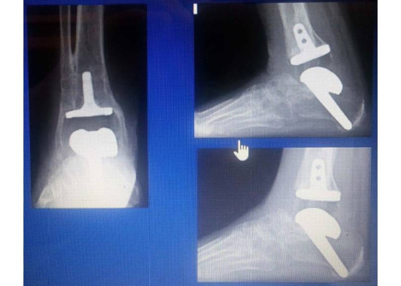 Screen Shot: Foot Innovate - revision of a failed ankle replacement: replacement or arthrodesis